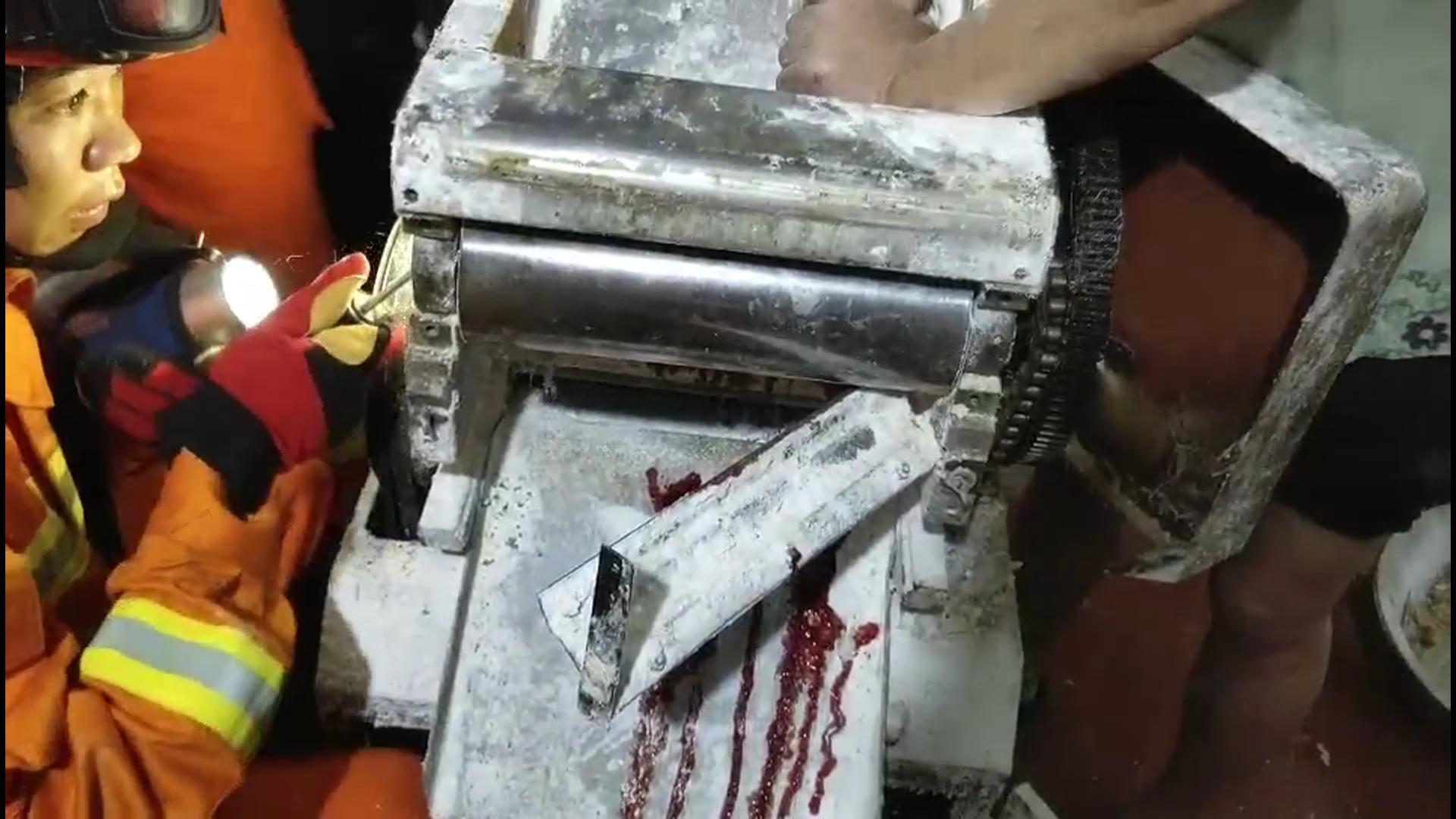 宁波一面店老板娘擀面右手被卡压面机
