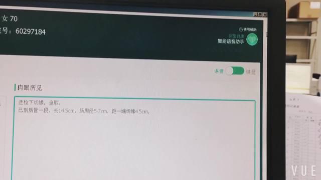 浙一医疗AI语音输入——病理科